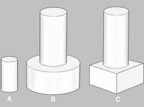 Comment construire les plots de fondation ? | Leroy Merlin